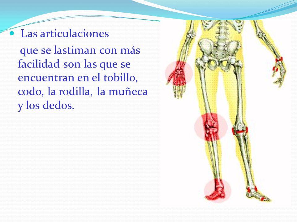 Las articulaciones que se lastiman con más facilidad son las que se encuentran en el tobillo, codo, la rodilla, la muñeca y los dedos.