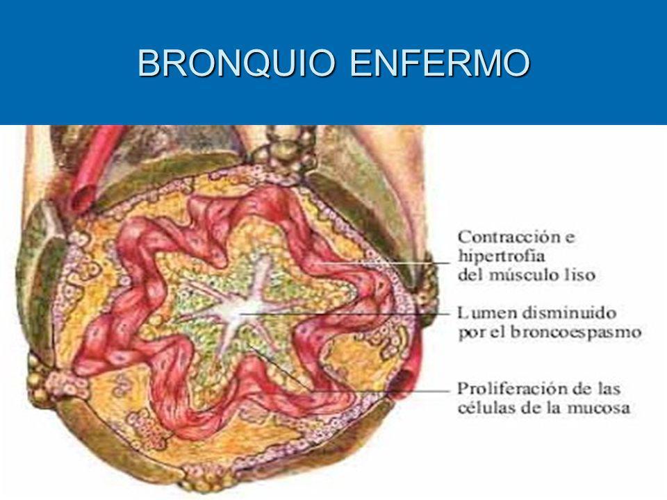 BRONQUIO ENFERMO