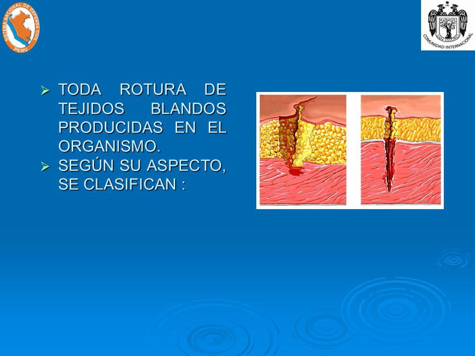 TODA ROTURA DE TEJIDOS BLANDOS PRODUCIDAS EN EL ORGANISMO.
