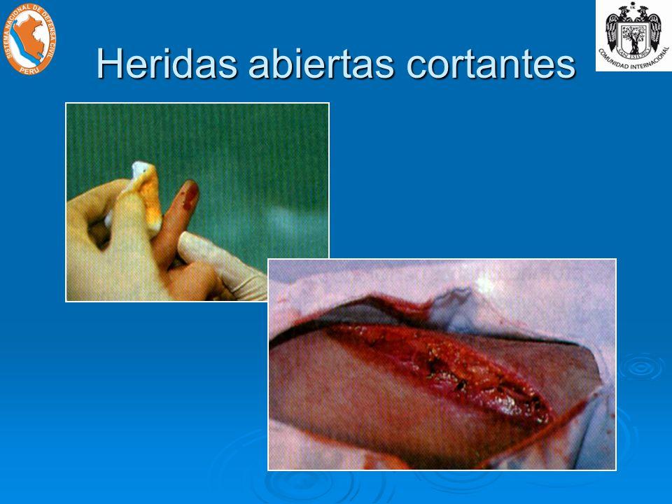 Heridas abiertas cortantes