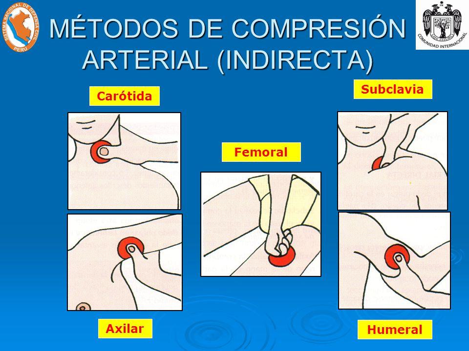 MÉTODOS DE COMPRESIÓN ARTERIAL (INDIRECTA)