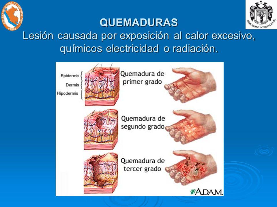 QUEMADURAS Lesión causada por exposición al calor excesivo, químicos electricidad o radiación.