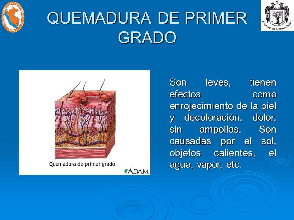 QUEMADURA DE PRIMER GRADO