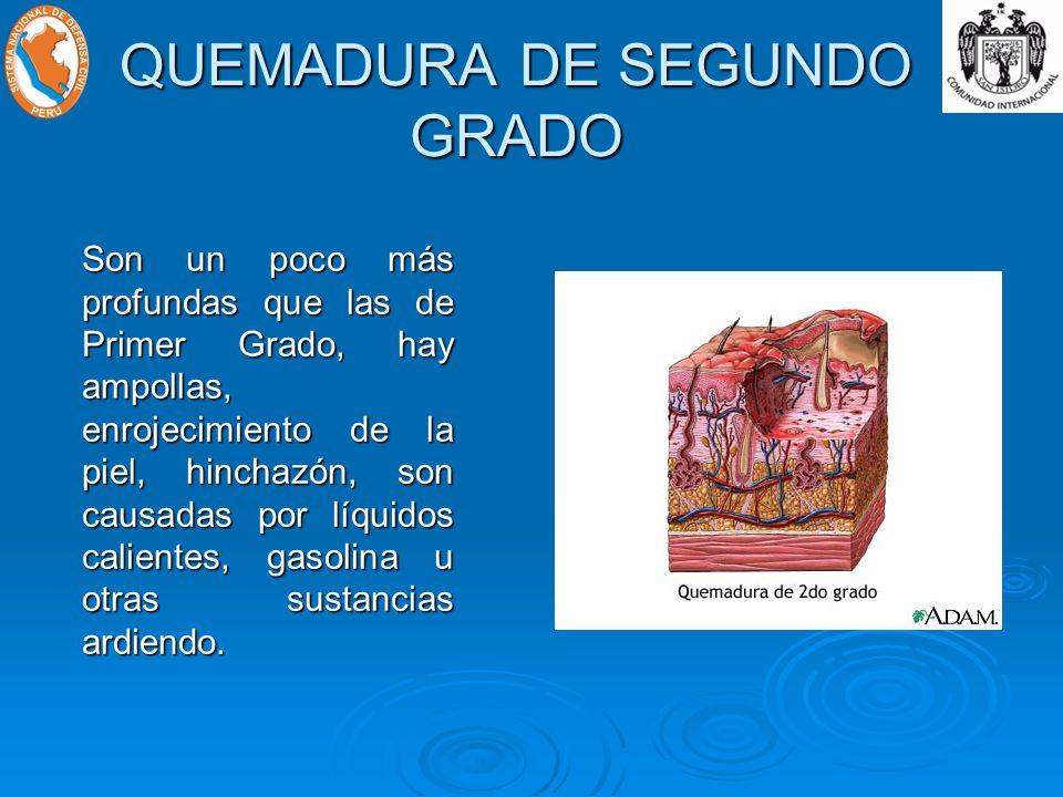 QUEMADURA DE SEGUNDO GRADO