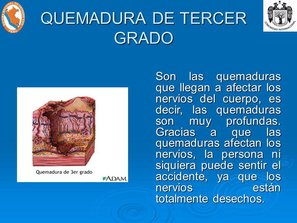 QUEMADURA DE TERCER GRADO
