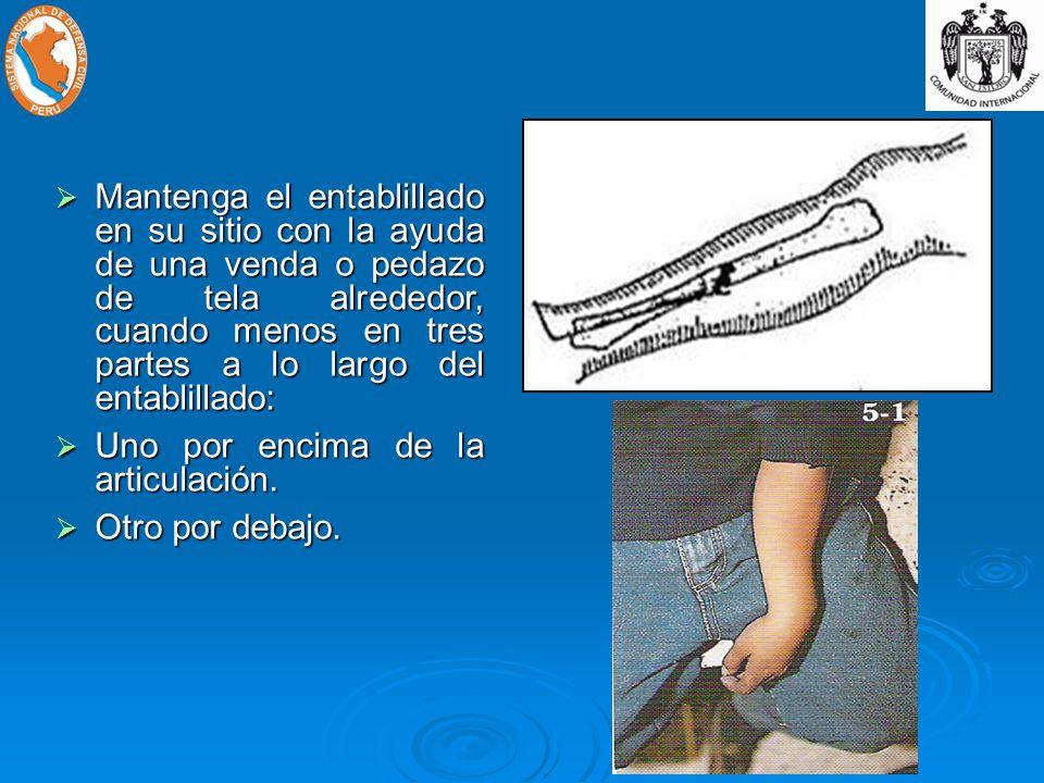 Mantenga el entablillado en su sitio con la ayuda de una venda o pedazo de tela alrededor, cuando menos en tres partes a lo largo del entablillado: