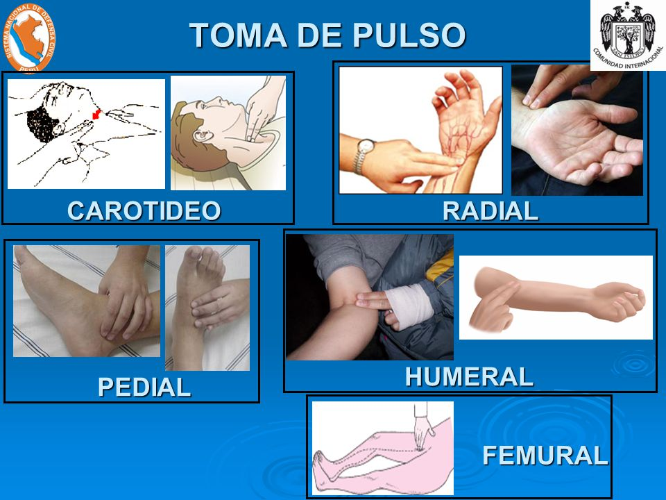 TOMA DE PULSO CAROTIDEO RADIAL HUMERAL PEDIAL FEMURAL