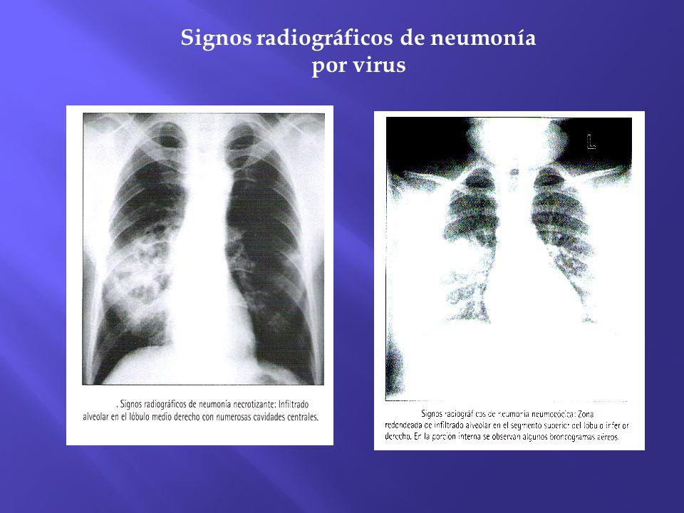 Signos radiográficos de neumonía