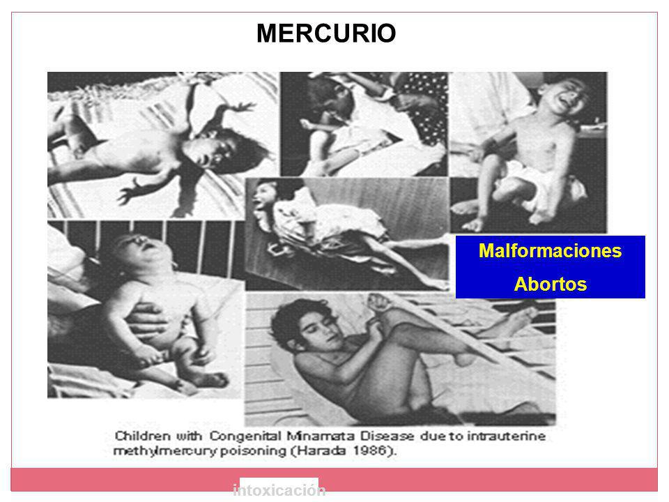 MERCURIO Malformaciones Abortos intoxicación