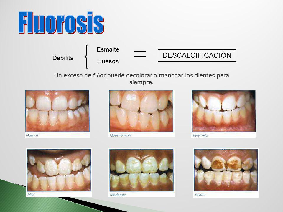 Un exceso de flúor puede decolorar o manchar los dientes para siempre.
