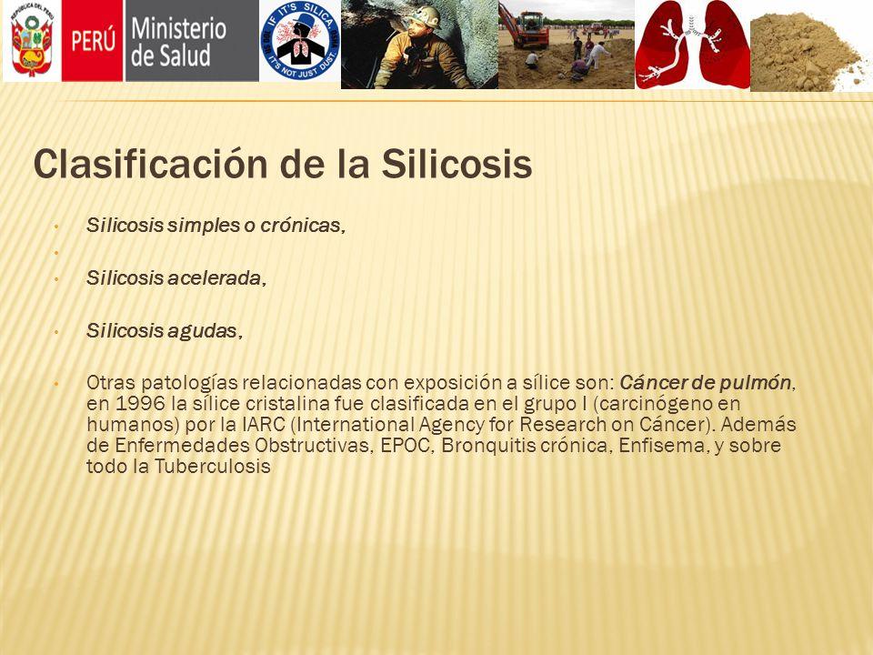 Clasificación de la Silicosis