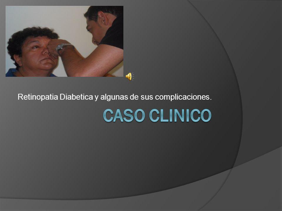 Retinopatia Diabetica y algunas de sus complicaciones.