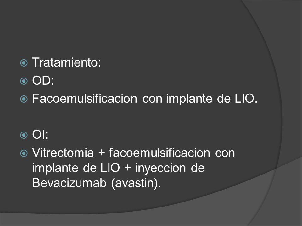 Tratamiento: OD: Facoemulsificacion con implante de LIO. OI: