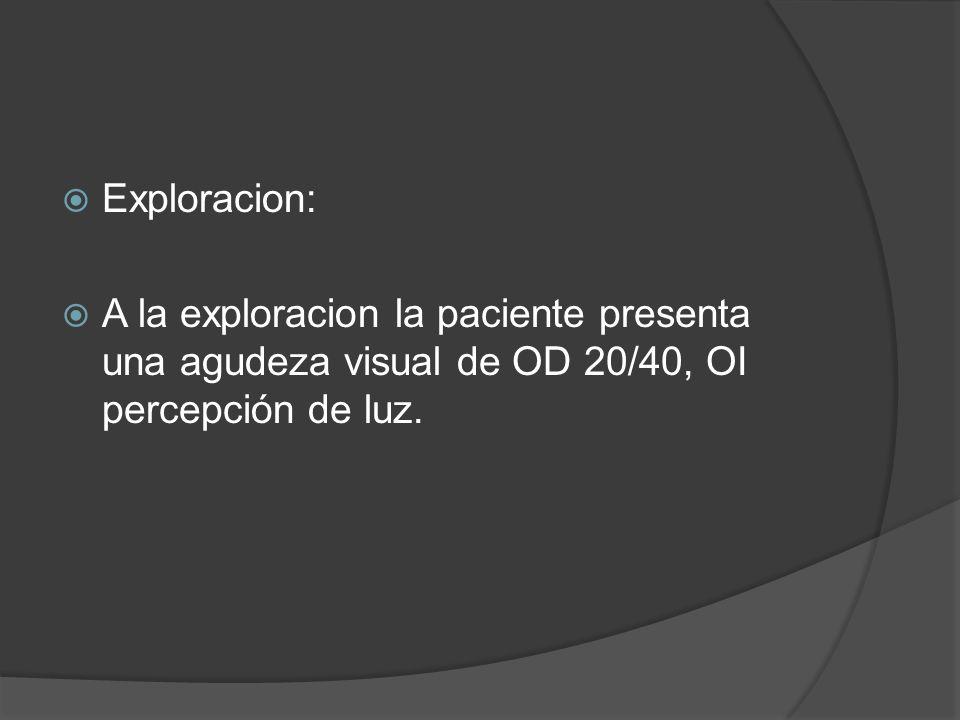 Exploracion: A la exploracion la paciente presenta una agudeza visual de OD 20/40, OI percepción de luz.