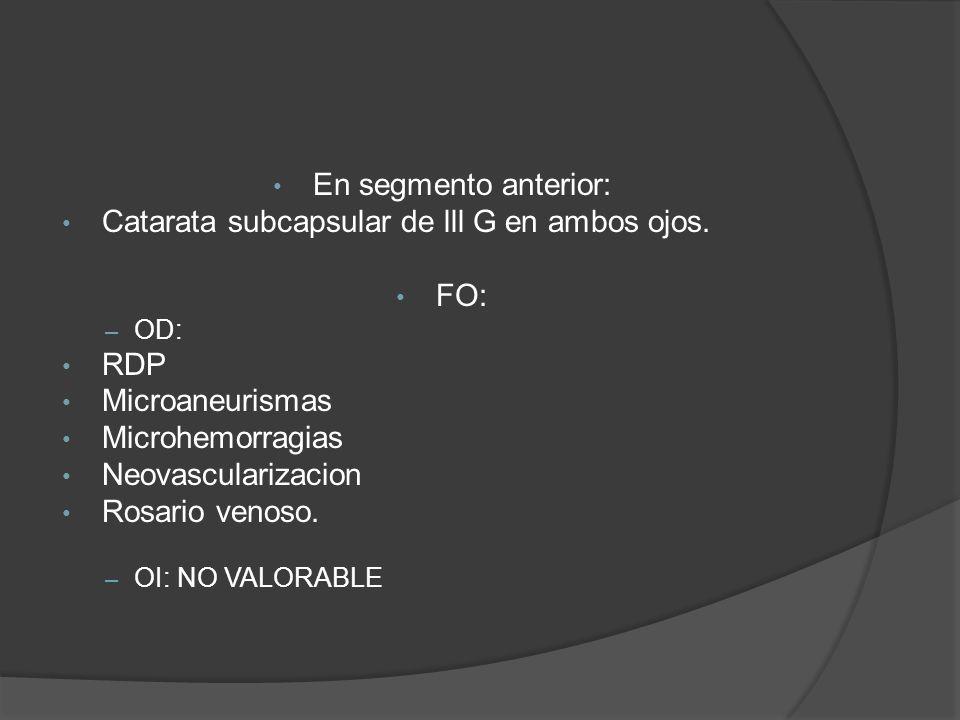 Catarata subcapsular de lll G en ambos ojos. FO: RDP Microaneurismas