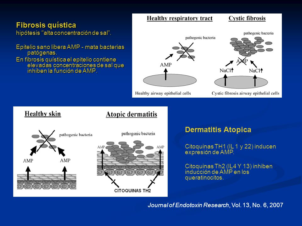 Fibrosis quística Dermatitis Atopica