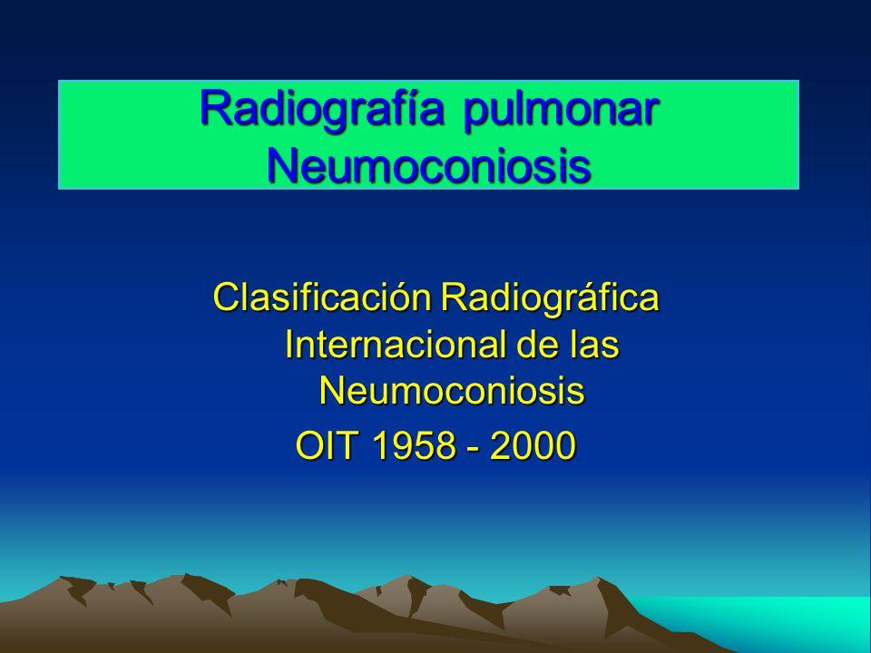 Radiografía pulmonar Neumoconiosis