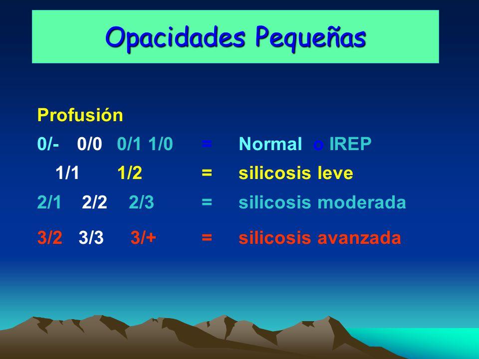 Opacidades Pequeñas Profusión 0/- 0/0 0/1 1/0 = Normal o IREP