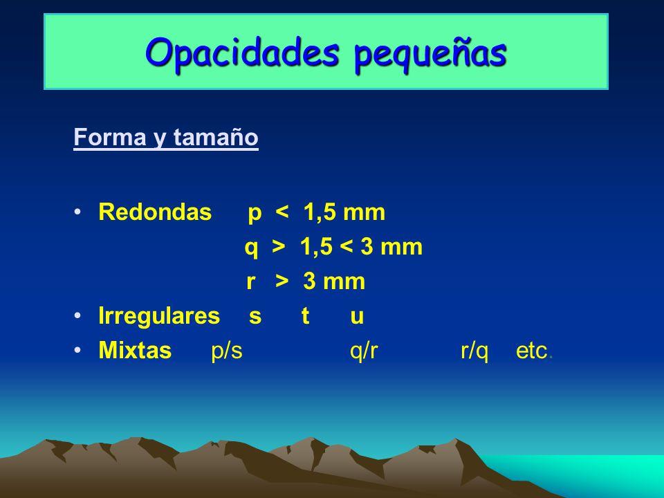 Opacidades pequeñas Forma y tamaño Redondas p < 1,5 mm