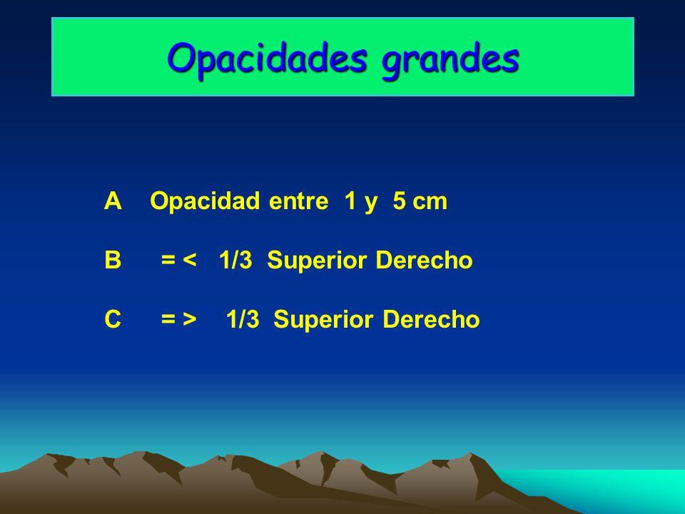 Opacidades grandes A Opacidad entre 1 y 5 cm