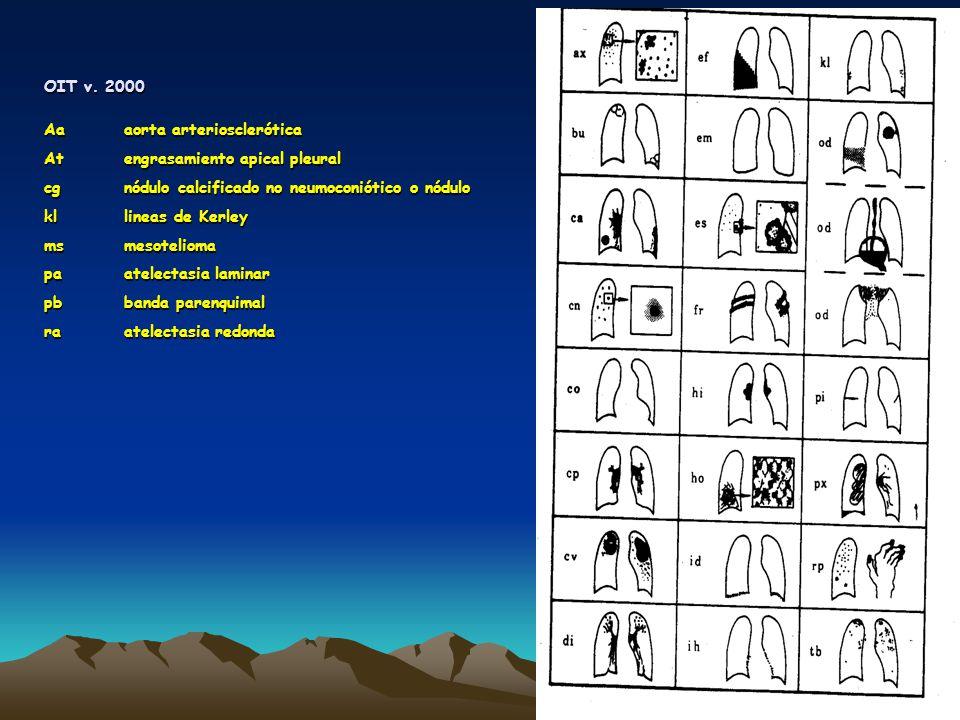 OIT v. 2000 Aa aorta arteriosclerótica. At engrasamiento apical pleural. cg nódulo calcificado no neumoconiótico o nódulo.
