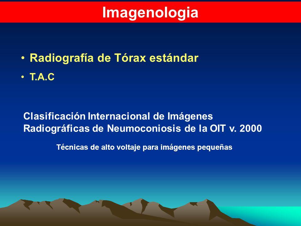 Imagenologia Radiografía de Tórax estándar T.A.C