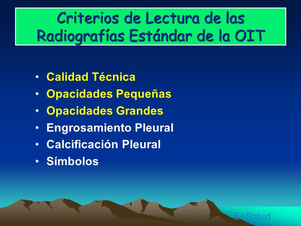 Criterios de Lectura de las Radiografías Estándar de la OIT