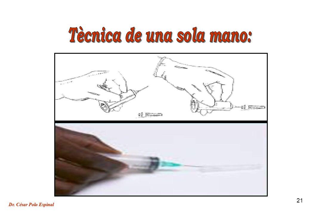 Tècnica de una sola mano: