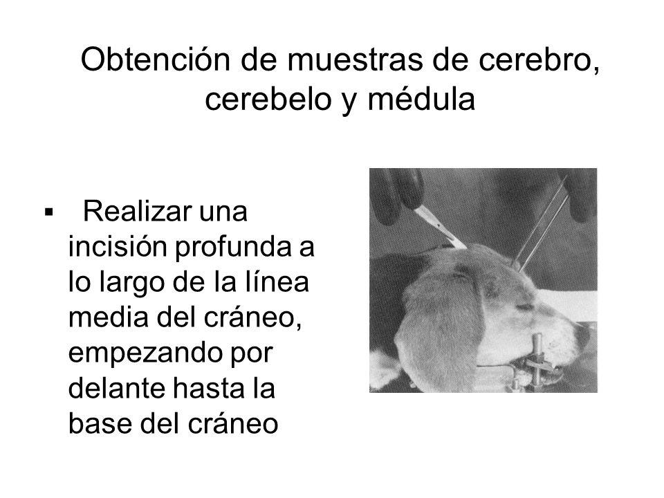 Obtención de muestras de cerebro, cerebelo y médula