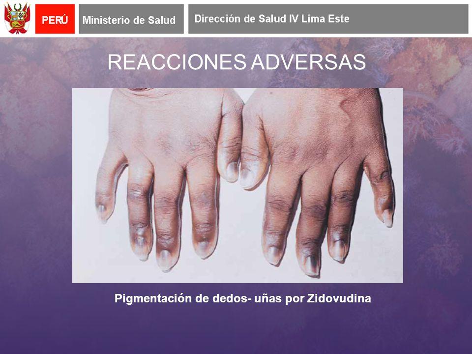 REACCIONES ADVERSAS Pigmentación de dedos- uñas por Zidovudina