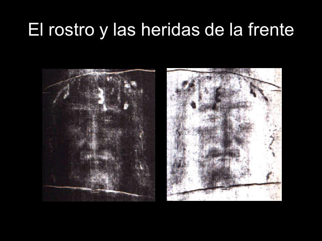 El rostro y las heridas de la frente