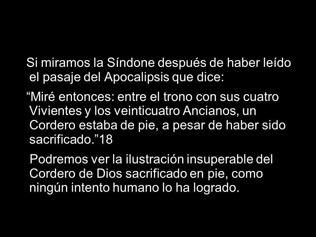 Si miramos la Síndone después de haber leído el pasaje del Apocalipsis que dice: