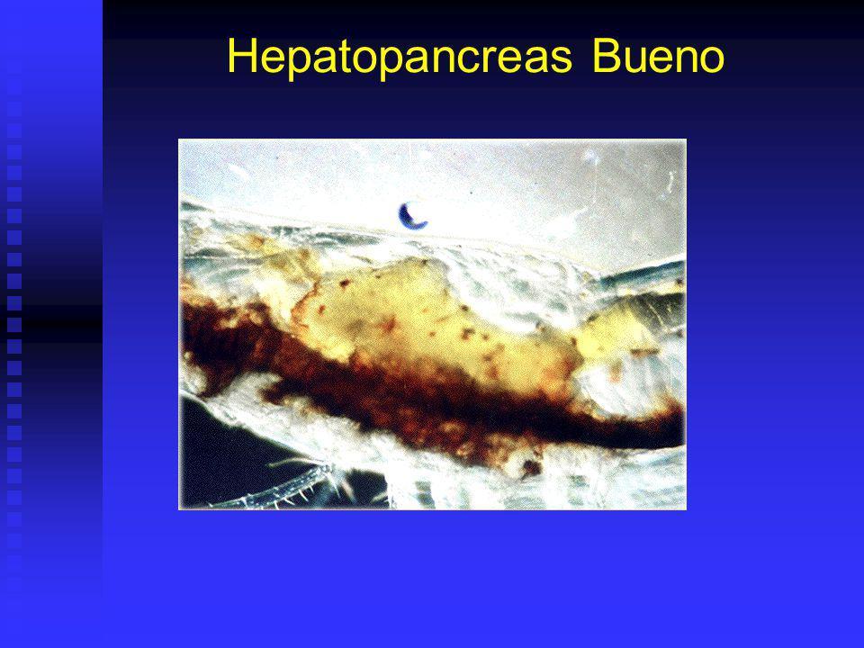 Hepatopancreas Bueno