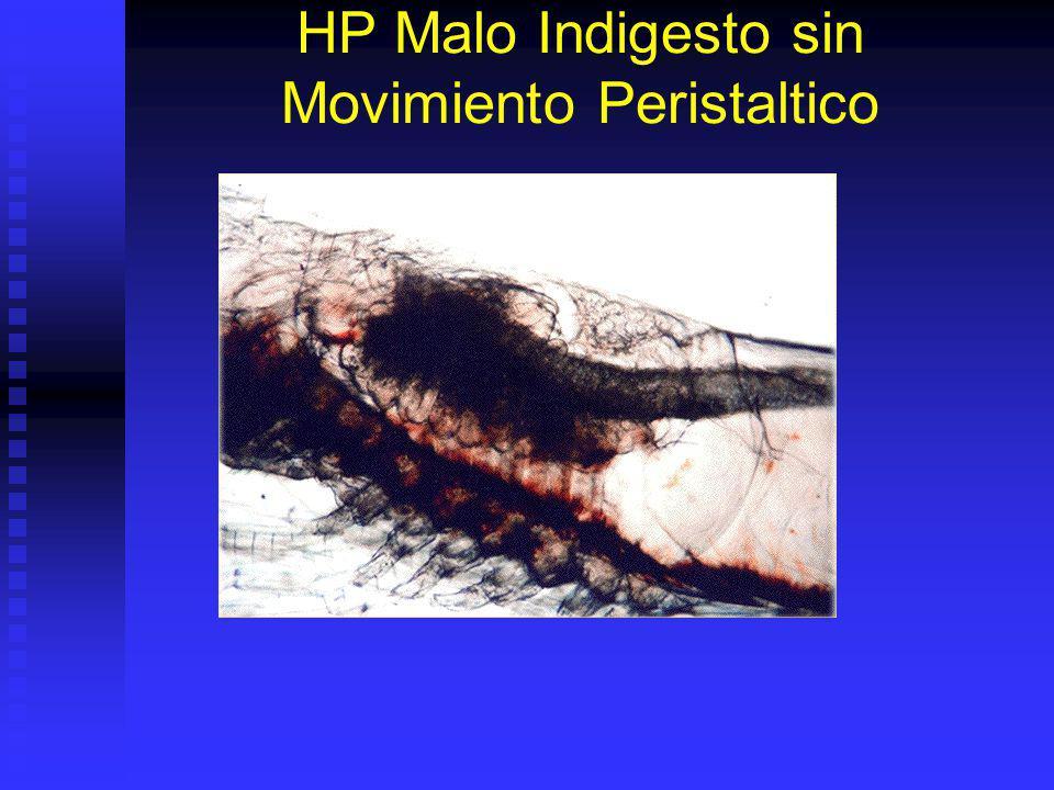 HP Malo Indigesto sin Movimiento Peristaltico