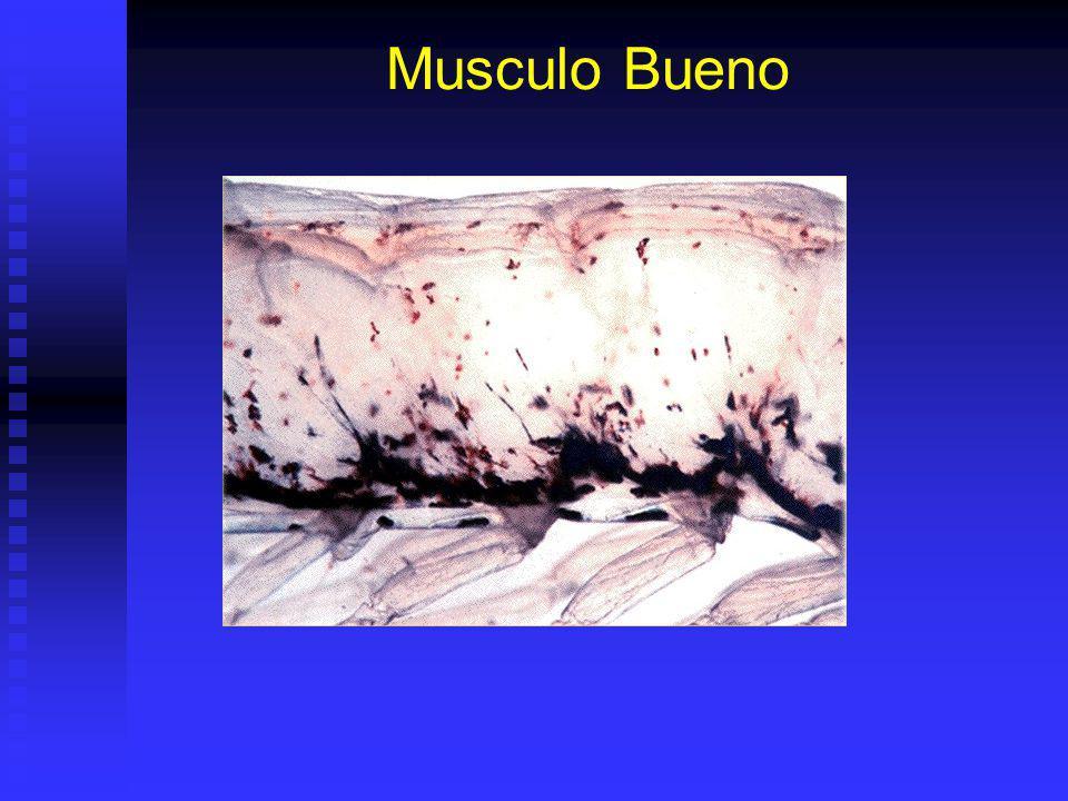 Musculo Bueno