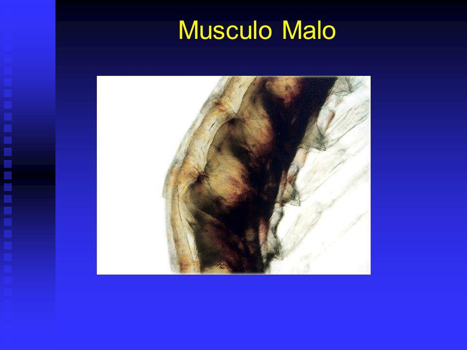 Musculo Malo