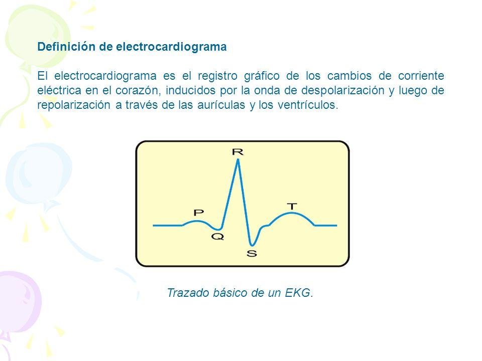 Trazado básico de un EKG.