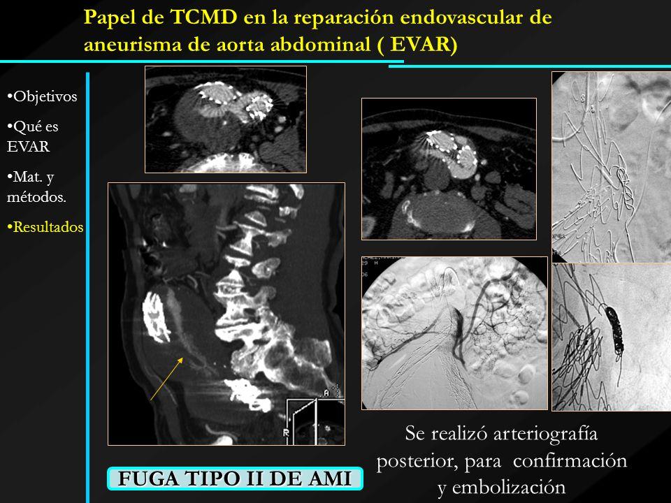 Se realizó arteriografía posterior, para confirmación y embolización