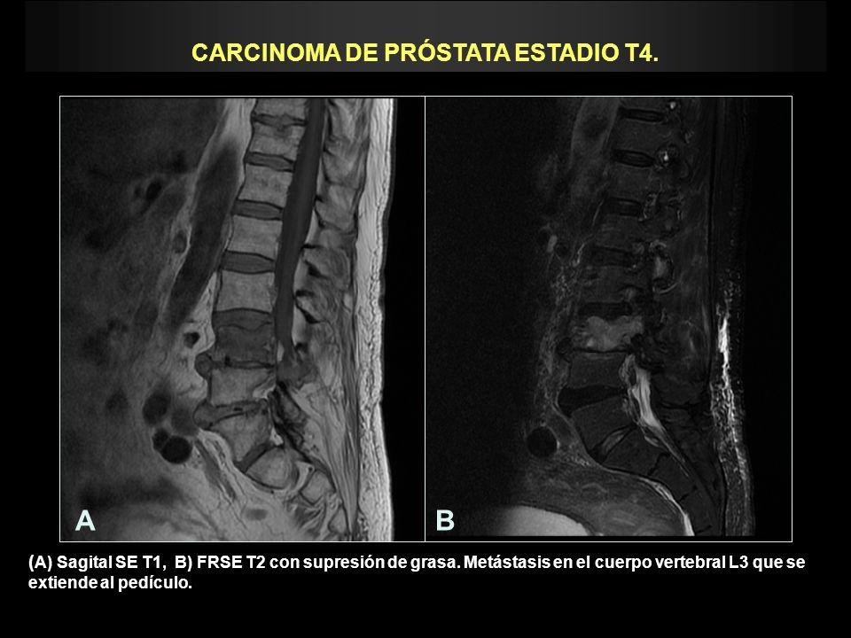 CARCINOMA DE PRÓSTATA ESTADIO T4.