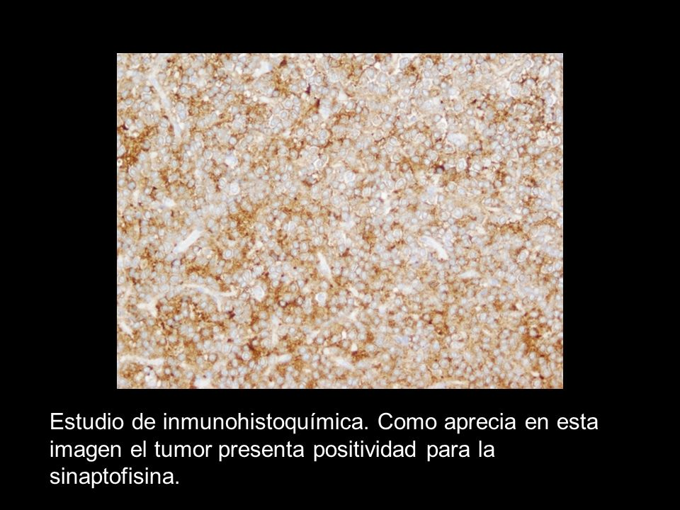 Estudio de inmunohistoquímica
