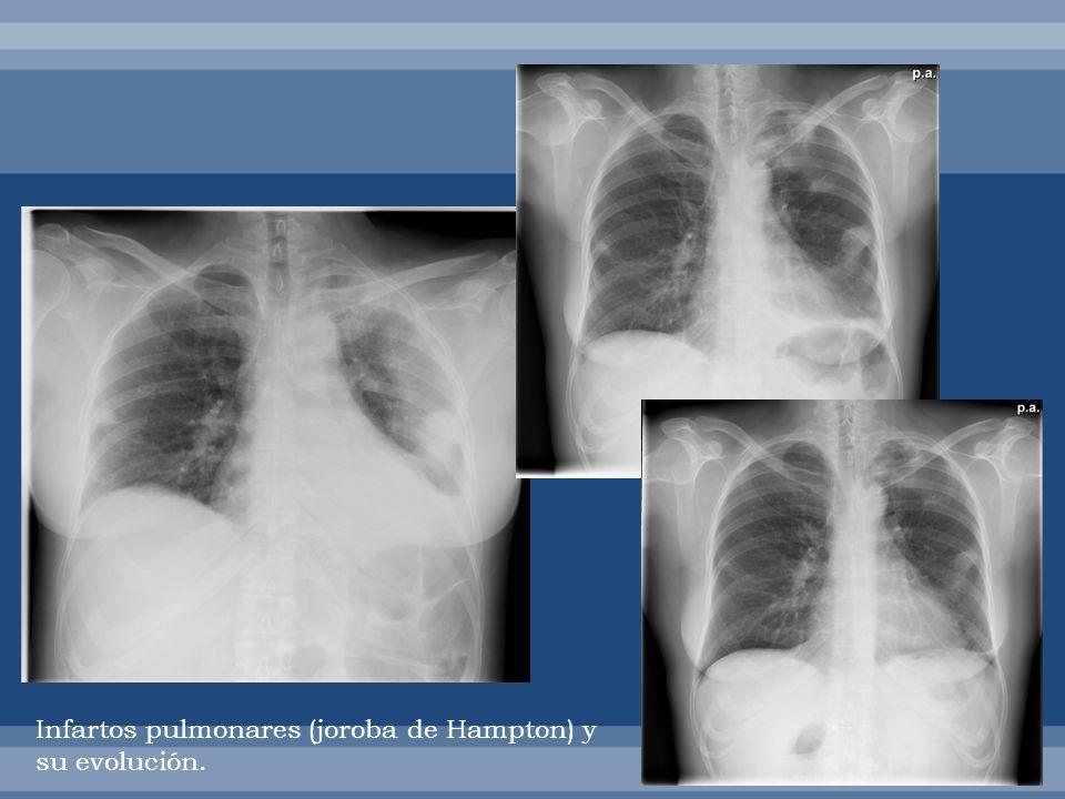 Infartos pulmonares (joroba de Hampton) y su evolución.