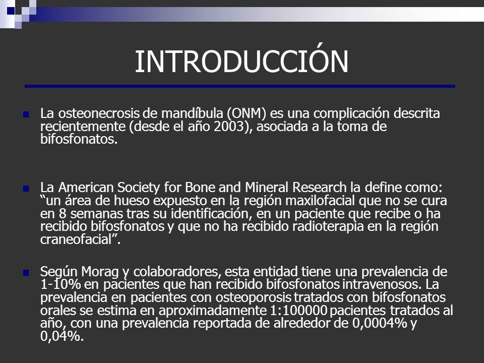 INTRODUCCIÓN La osteonecrosis de mandíbula (ONM) es una complicación descrita recientemente (desde el año 2003), asociada a la toma de bifosfonatos.
