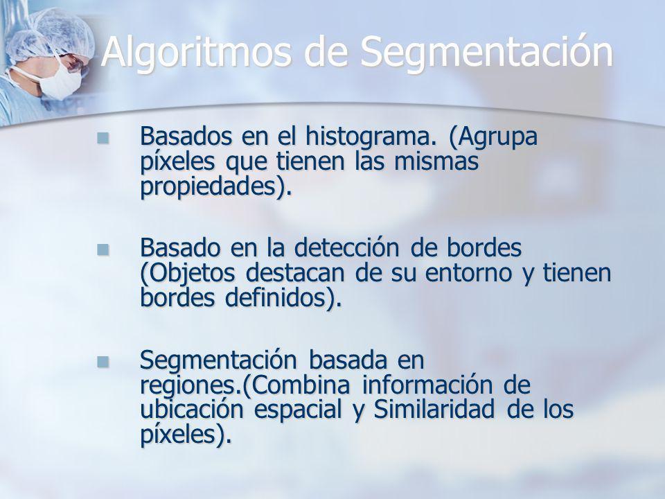 Algoritmos de Segmentación