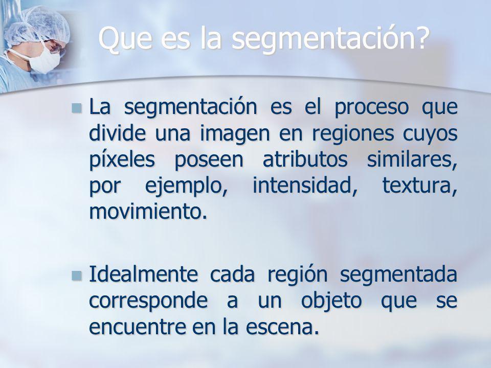 Que es la segmentación