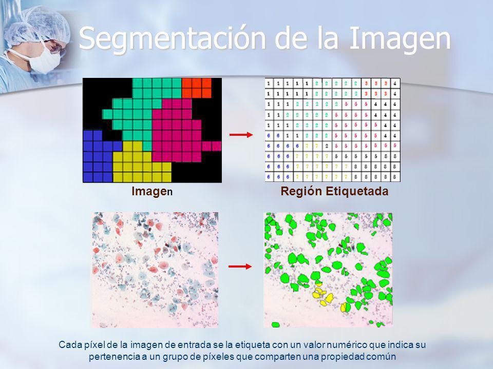 Segmentación de la Imagen