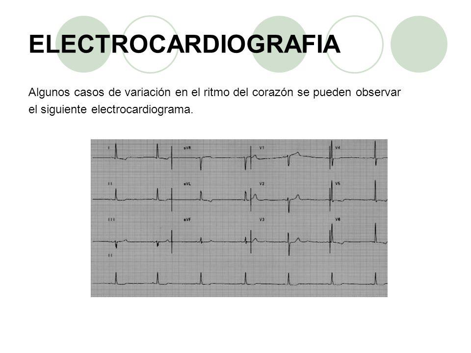 ELECTROCARDIOGRAFIA Algunos casos de variación en el ritmo del corazón se pueden observar. el siguiente electrocardiograma.