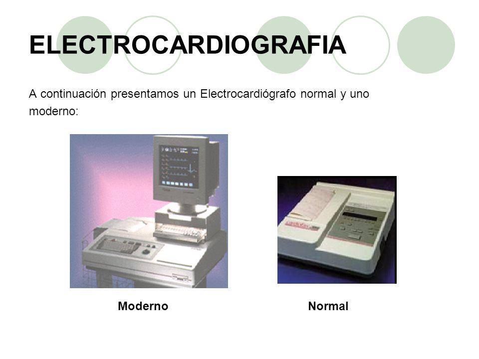 ELECTROCARDIOGRAFIA A continuación presentamos un Electrocardiógrafo normal y uno. moderno: Moderno.