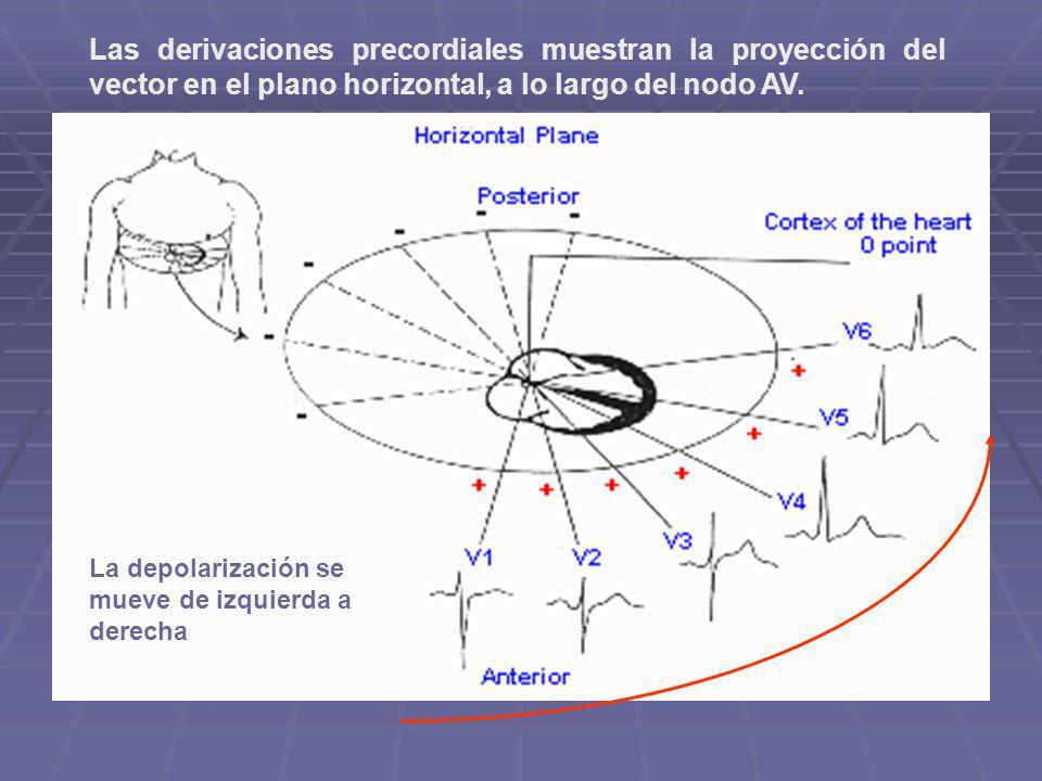 Las derivaciones precordiales muestran la proyección del vector en el plano horizontal, a lo largo del nodo AV.