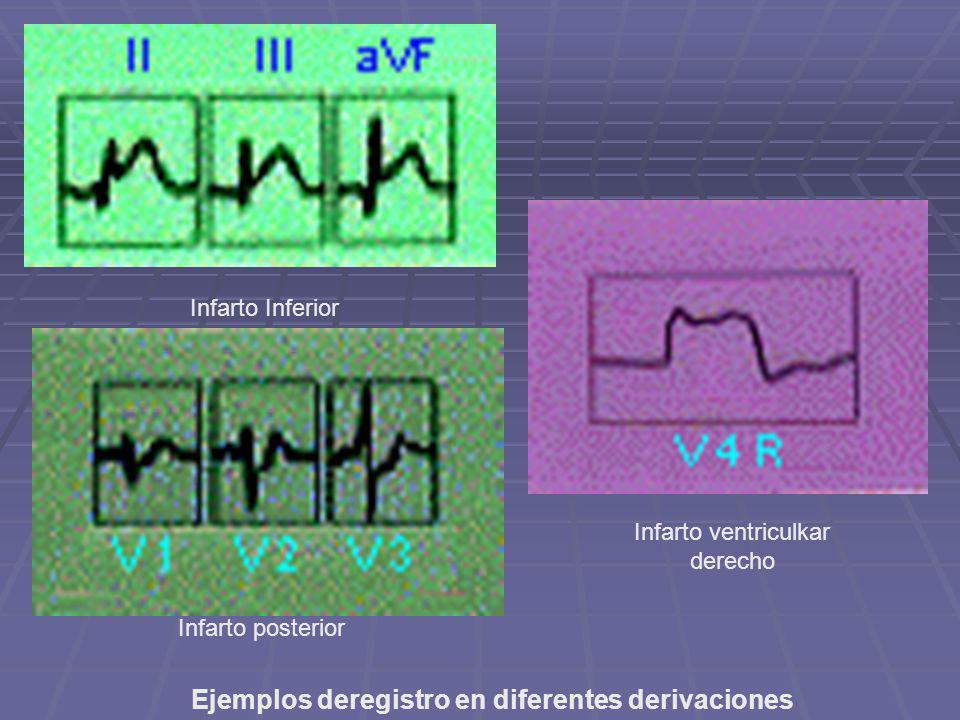 Ejemplos deregistro en diferentes derivaciones