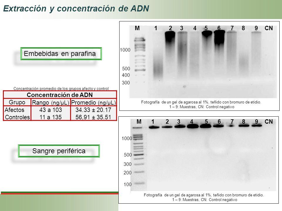 Extracción y concentración de ADN